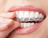Teeth-whitening-Port-Coquitlam