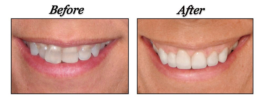 before and after shots - dentist poco - dr. alice caners