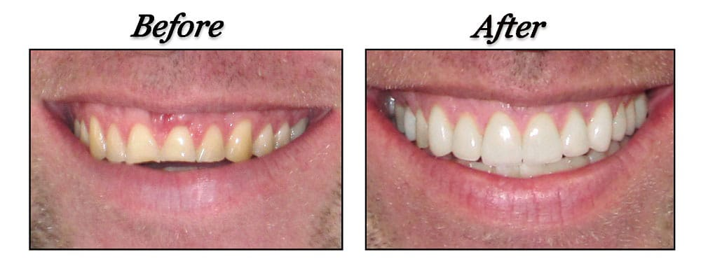 dentist port coquitlam before and after