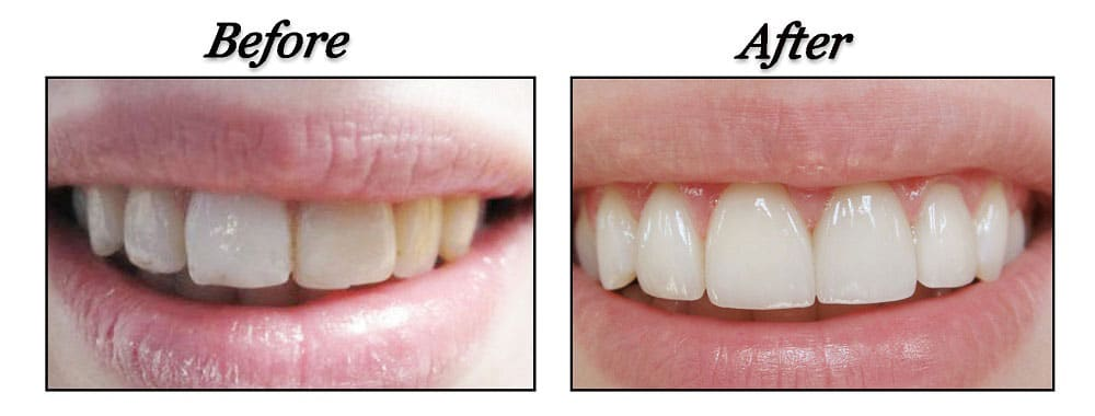 dentist port coquitlam - before and after