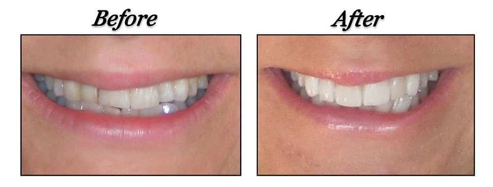port coquitlam dentist before and after